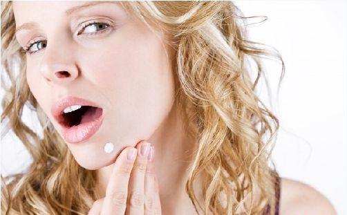 Tỏ tường về cách trị mụn bọc bằng kem đánh răng dễ làm nhất 3