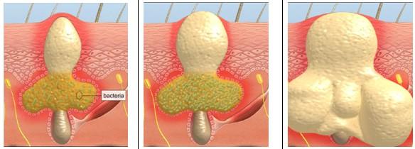 Bạn đã tìm được cách chữa mụn bọc ở cằm hiệu quả chưa? 1