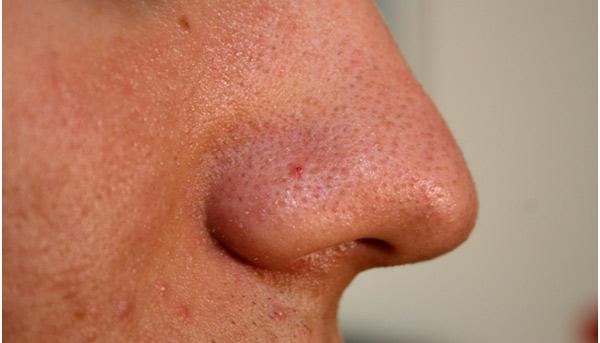 Cứu bạn khỏi nỗi lo mụn với cách trị mụn bọc ở mũi nhanh nhất 1