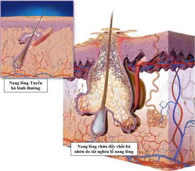 Đâu mới là cách chữa mụn bọc cho nam hiệu quả nhất? 2