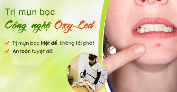 Trị mụn bọc bằng Oxy-Led cho hiệu quả trị mụn lên đến 95%