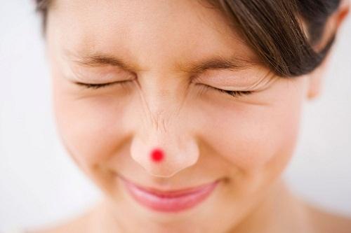 Có thể trị mụn bọc viêm đỏ bằng cách nào? 1Có thể trị mụn bọc viêm đỏ bằng cách nào? 1