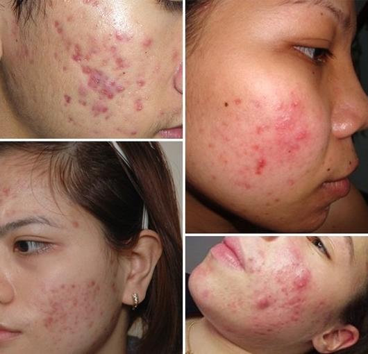 tri-mun-boc-bang-cong-nghe-nano-skin-gia-bao-nhieu (2)