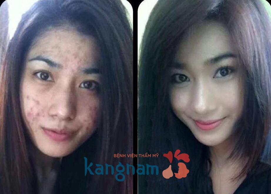 tri-mun-boc-bang-cong-nghe-nano-skin-co-dau-khong (2)
