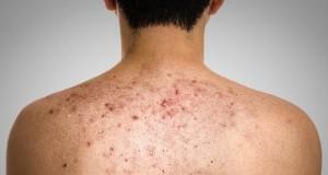 Bật mí phương pháp trị mụn bọc ở lưng cho nam giới