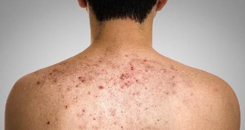 Bật mí phương pháp trị mụn bọc ở lưng cho nam giới  1