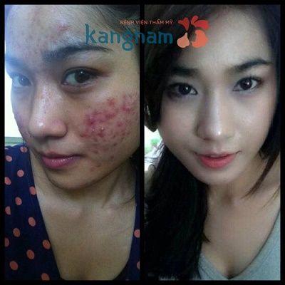 Có nên điều trị mụn bằng Nano skin không? 1