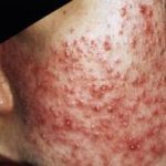 Nguyên nhân gây ra mụn bọc và cách điều trị